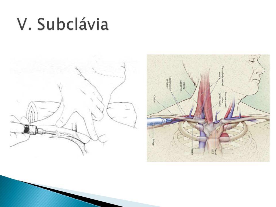 V. Subclávia