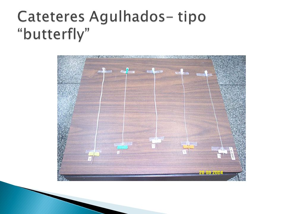 Cateteres Agulhados- tipo butterfly