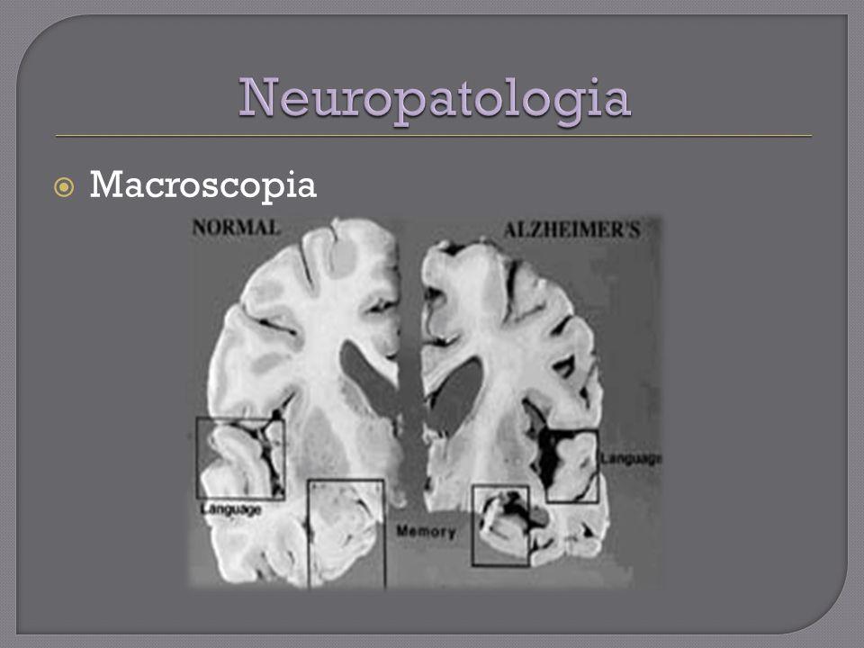 Neuropatologia Macroscopia