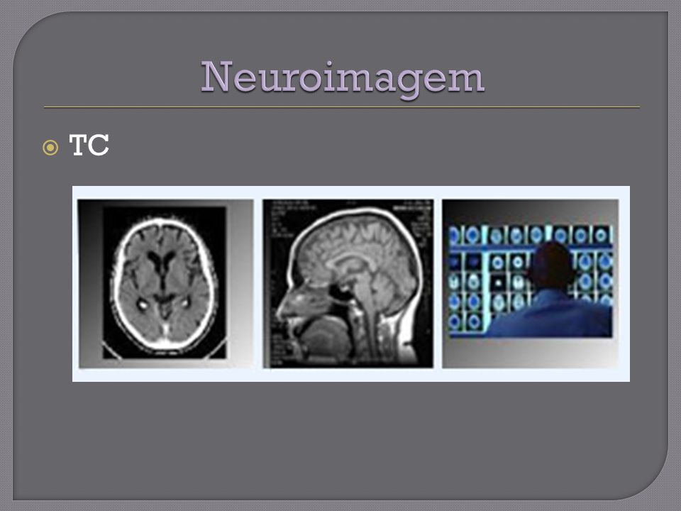 Neuroimagem TC