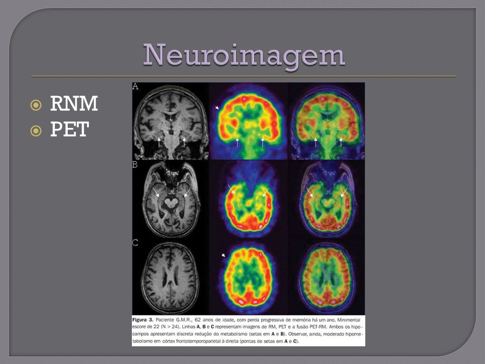 Neuroimagem RNM PET