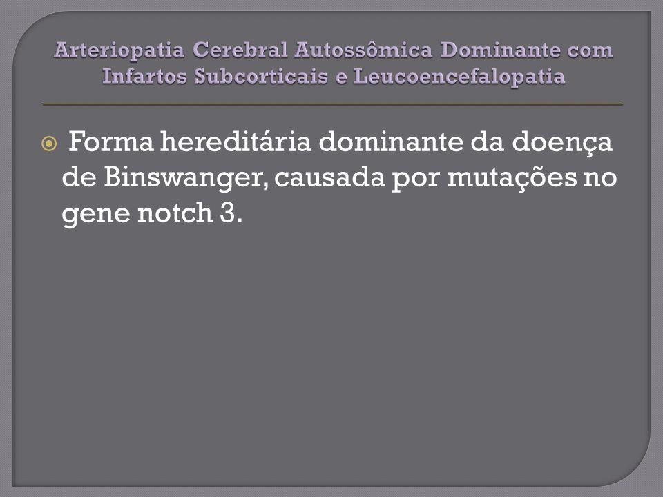 Arteriopatia Cerebral Autossômica Dominante com Infartos Subcorticais e Leucoencefalopatia