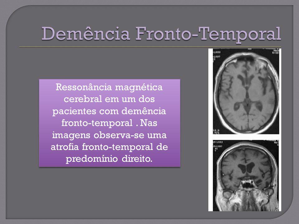 Demência Fronto-Temporal