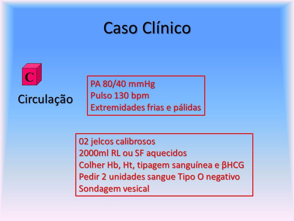 Caso Clínico C Circulação PA 80/40 mmHg Pulso 130 bpm
