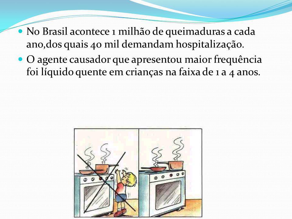 No Brasil acontece 1 milhão de queimaduras a cada ano,dos quais 40 mil demandam hospitalização.