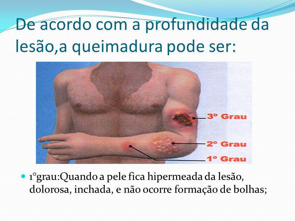 De acordo com a profundidade da lesão,a queimadura pode ser: