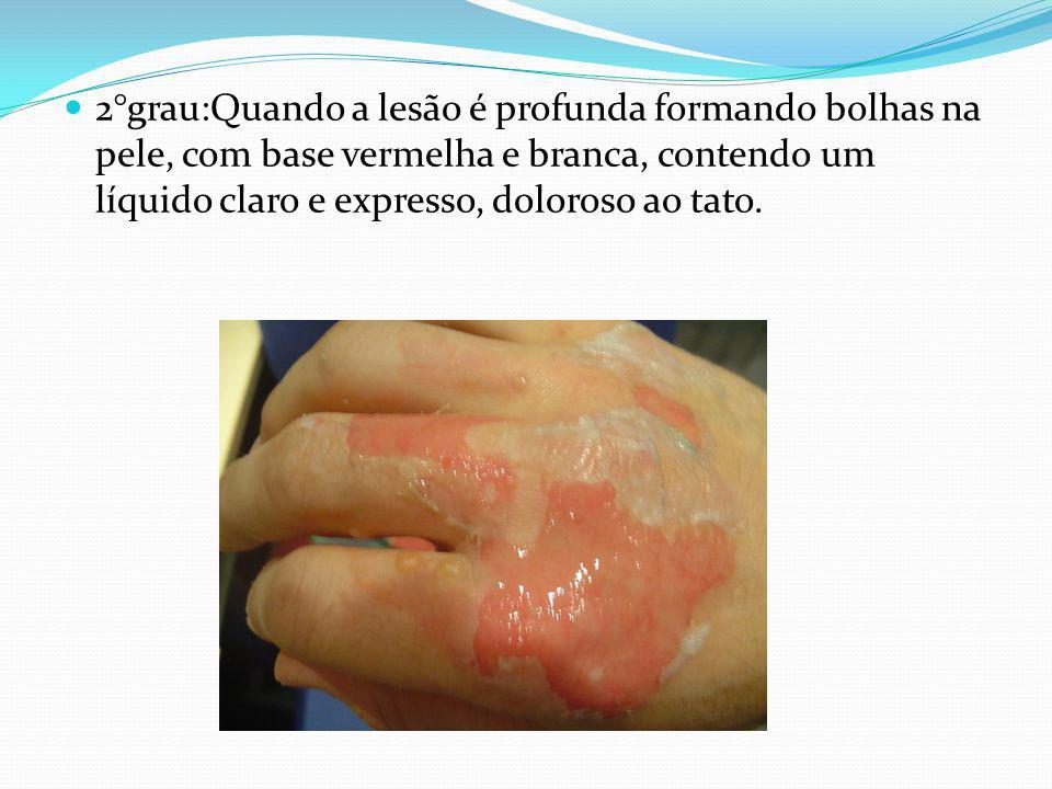 2°grau:Quando a lesão é profunda formando bolhas na pele, com base vermelha e branca, contendo um líquido claro e expresso, doloroso ao tato.
