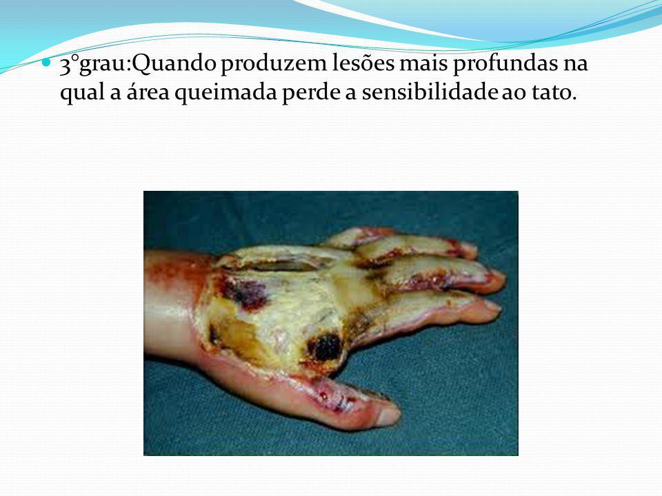 3°grau:Quando produzem lesões mais profundas na qual a área queimada perde a sensibilidade ao tato.