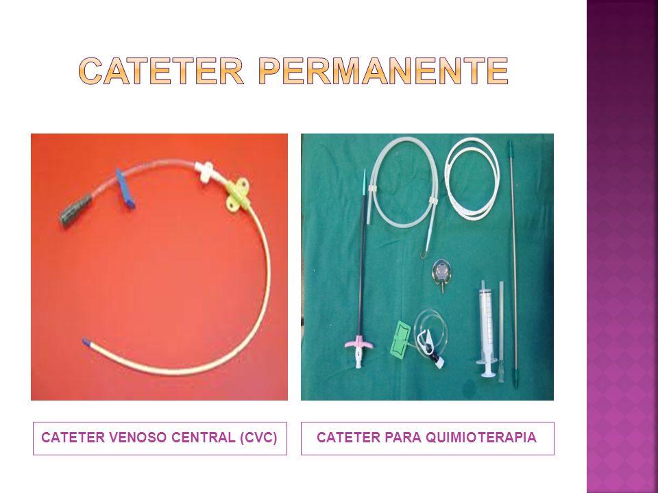 CATETER VENOSO CENTRAL (CVC) CATETER PARA QUIMIOTERAPIA