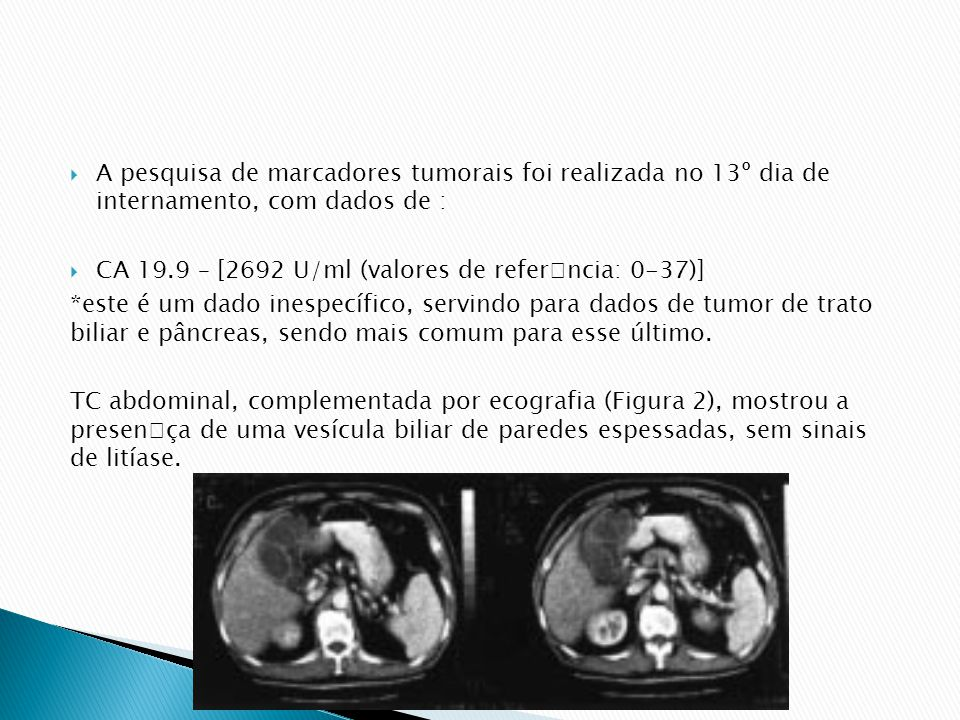 A pesquisa de marcadores tumorais foi realizada no 13º dia de internamento, com dados de :