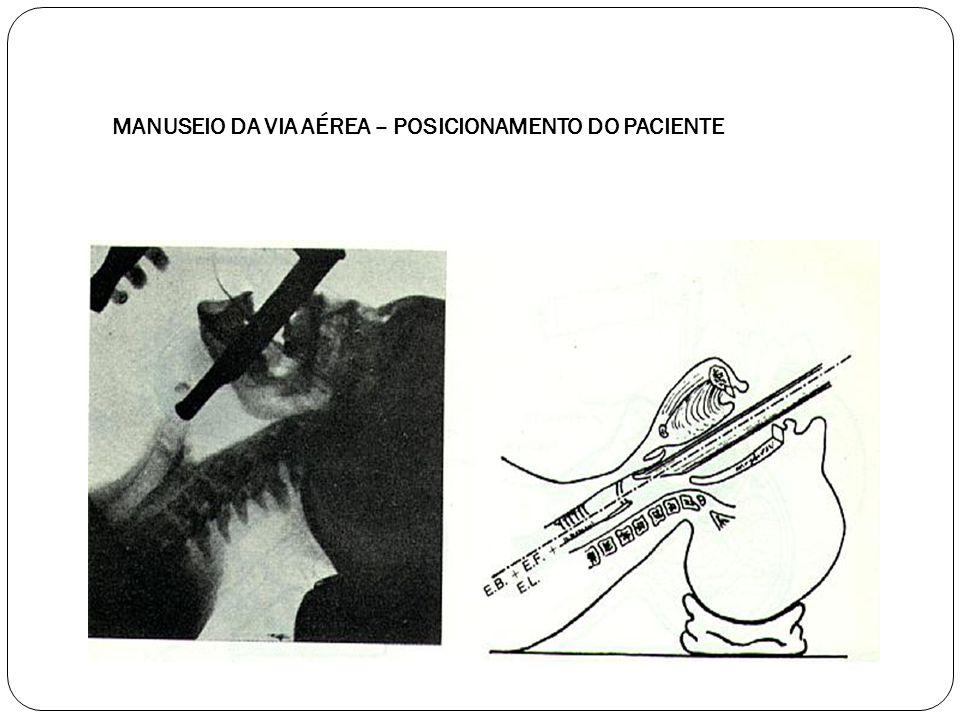 MANUSEIO DA VIA AÉREA – POSICIONAMENTO DO PACIENTE