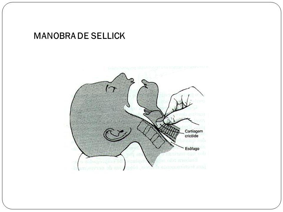 MANOBRA DE SELLICK