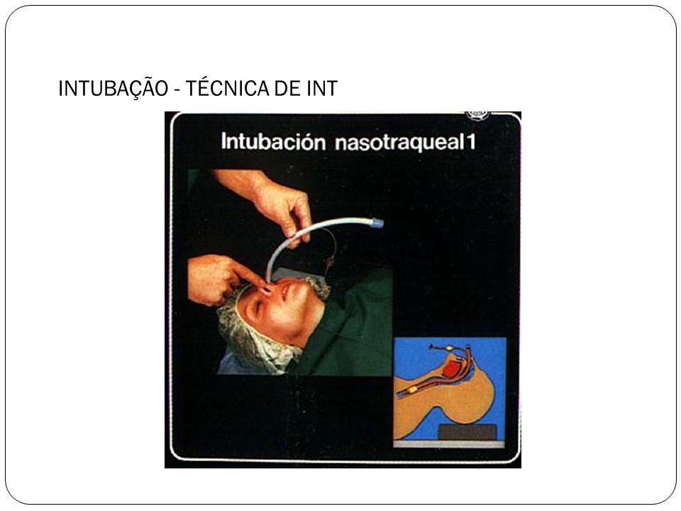 INTUBAÇÃO - TÉCNICA DE INT