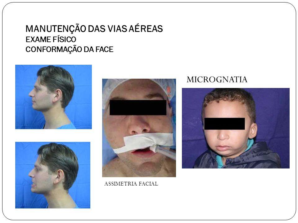 MANUTENÇÃO DAS VIAS AÉREAS EXAME FÍSICO CONFORMAÇÃO DA FACE