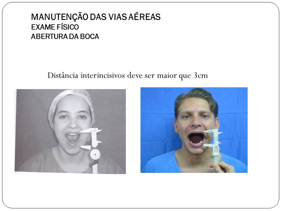 MANUTENÇÃO DAS VIAS AÉREAS EXAME FÍSICO ABERTURA DA BOCA