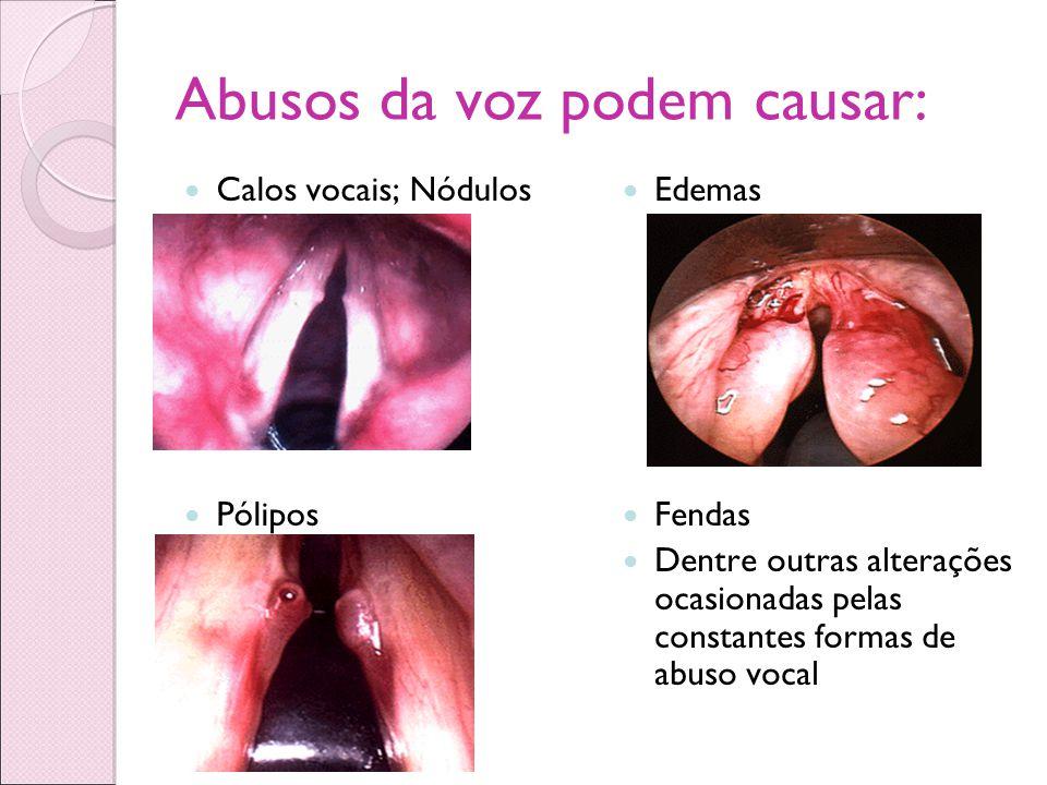 Abusos da voz podem causar: