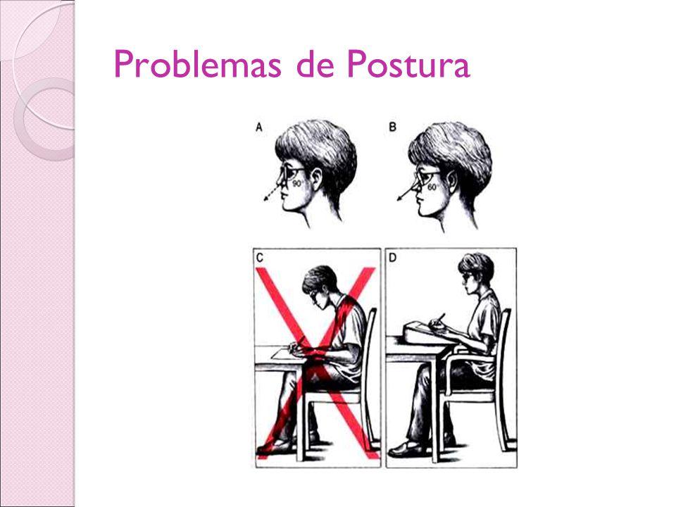 Problemas de Postura