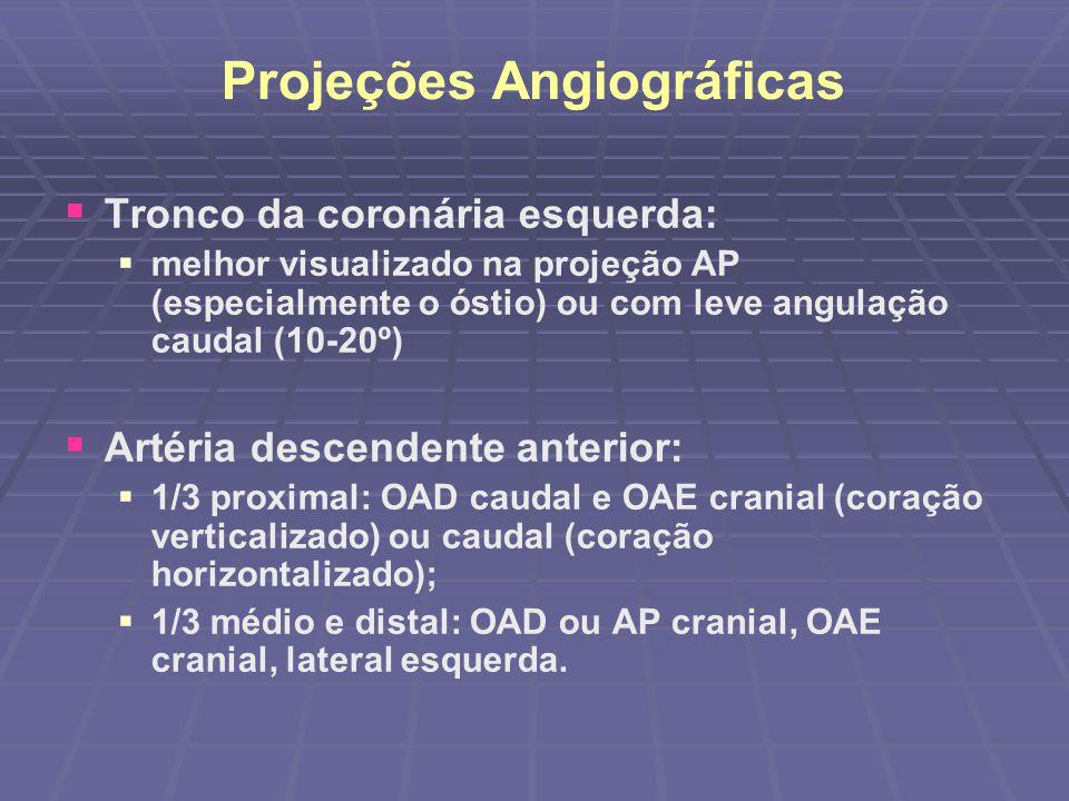 Projeções Angiográficas