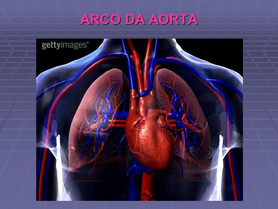 ARCO DA AORTA