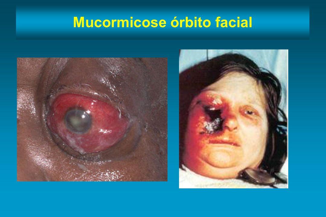 Mucormicose órbito facial