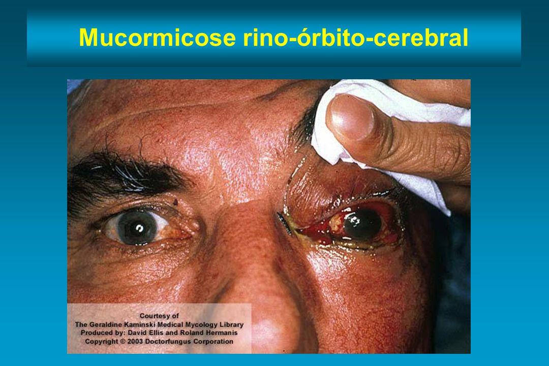 Mucormicose rino-órbito-cerebral