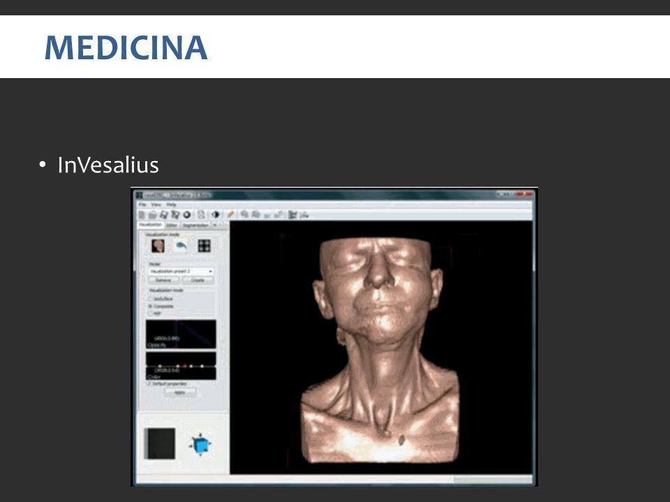 MEDICINA InVesalius. Video em: http://www.youtube.com/watch v=UuyhPKxb74E. É uma das areas que mais encontramos informações, Aplicações nessa area.
