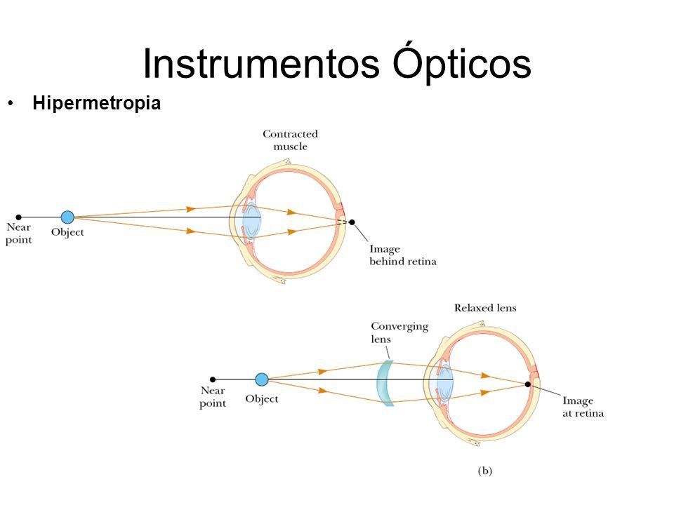 Instrumentos Ópticos Hipermetropia