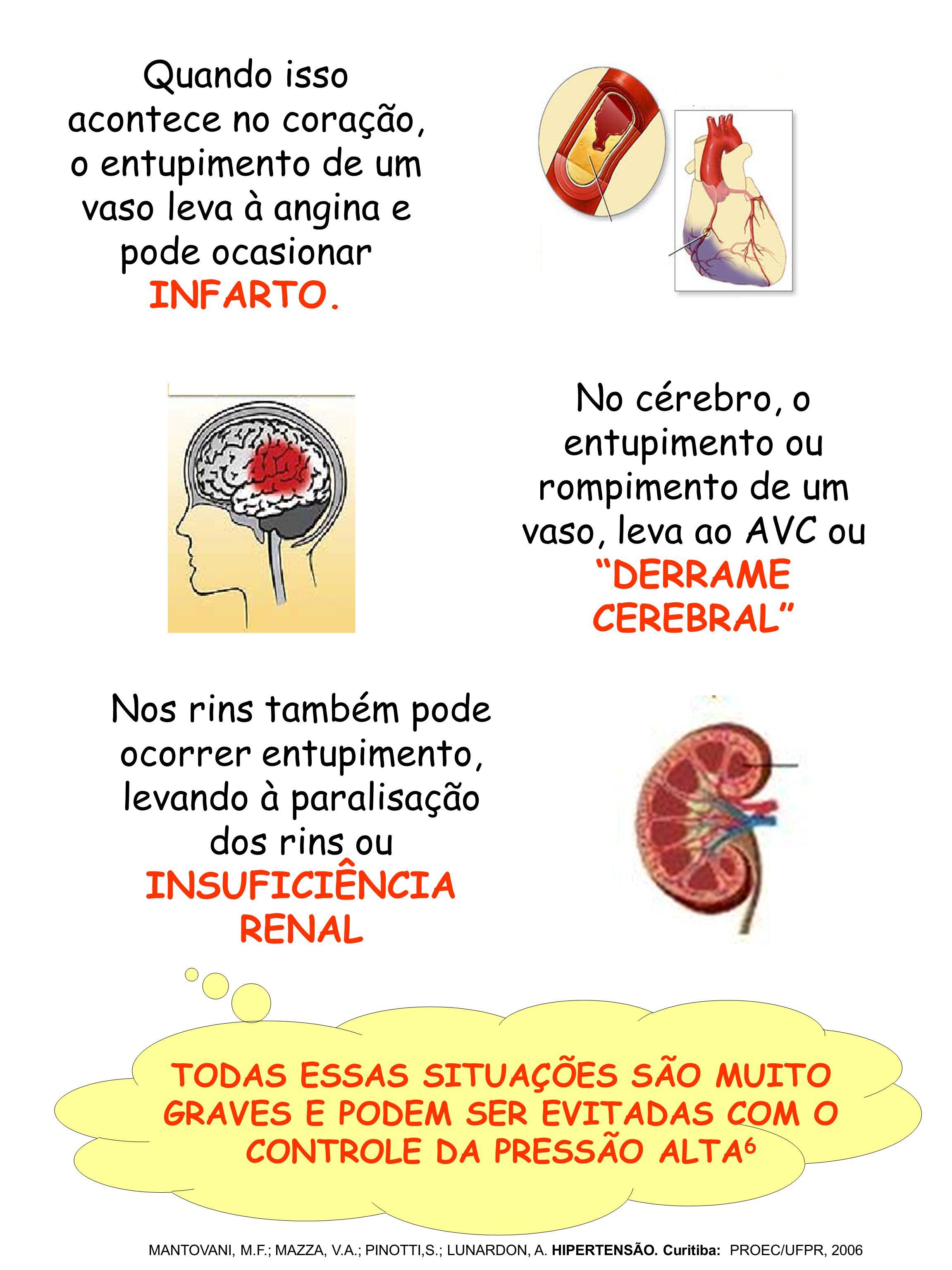 Quando isso acontece no coração, o entupimento de um vaso leva à angina e pode ocasionar INFARTO.