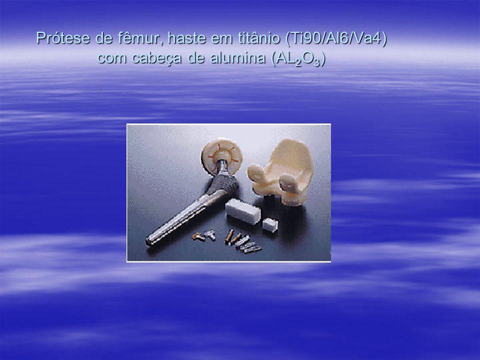 Prótese de fêmur, haste em titânio (Ti90/Al6/Va4) com cabeça de alumina (AL2O3)