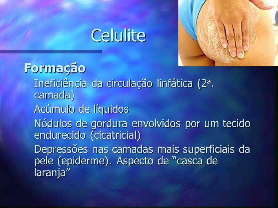 Celulite Formação Ineficiência da circulação linfática (2a. camada)