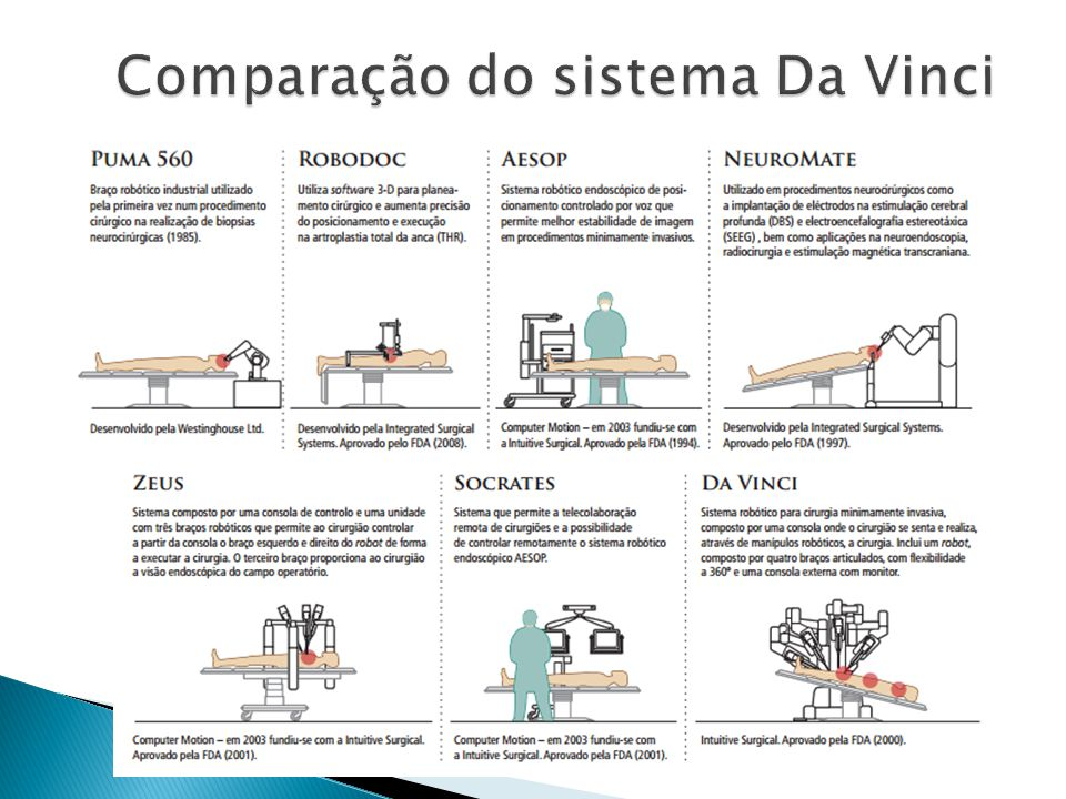 Comparação do sistema Da Vinci
