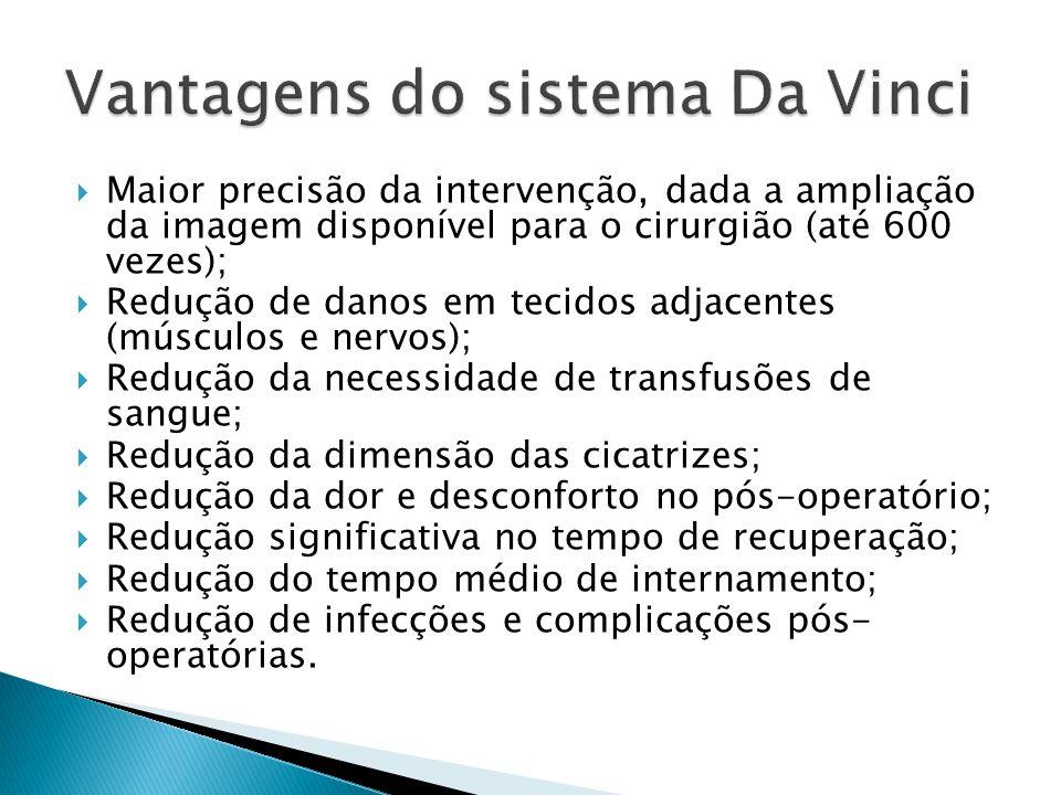 Vantagens do sistema Da Vinci