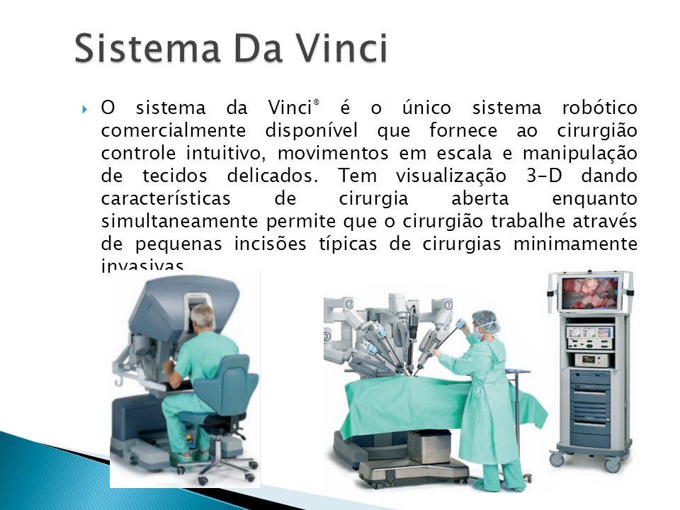 Sistema Da Vinci