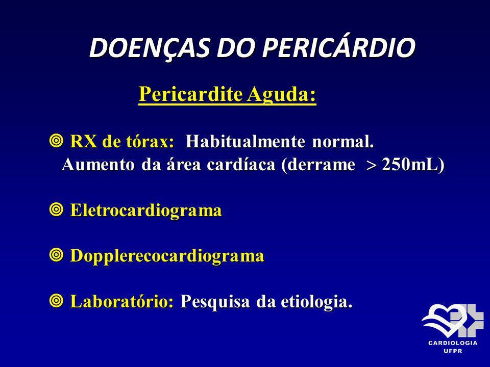 DOENÇAS DO PERICÁRDIO Pericardite Aguda: