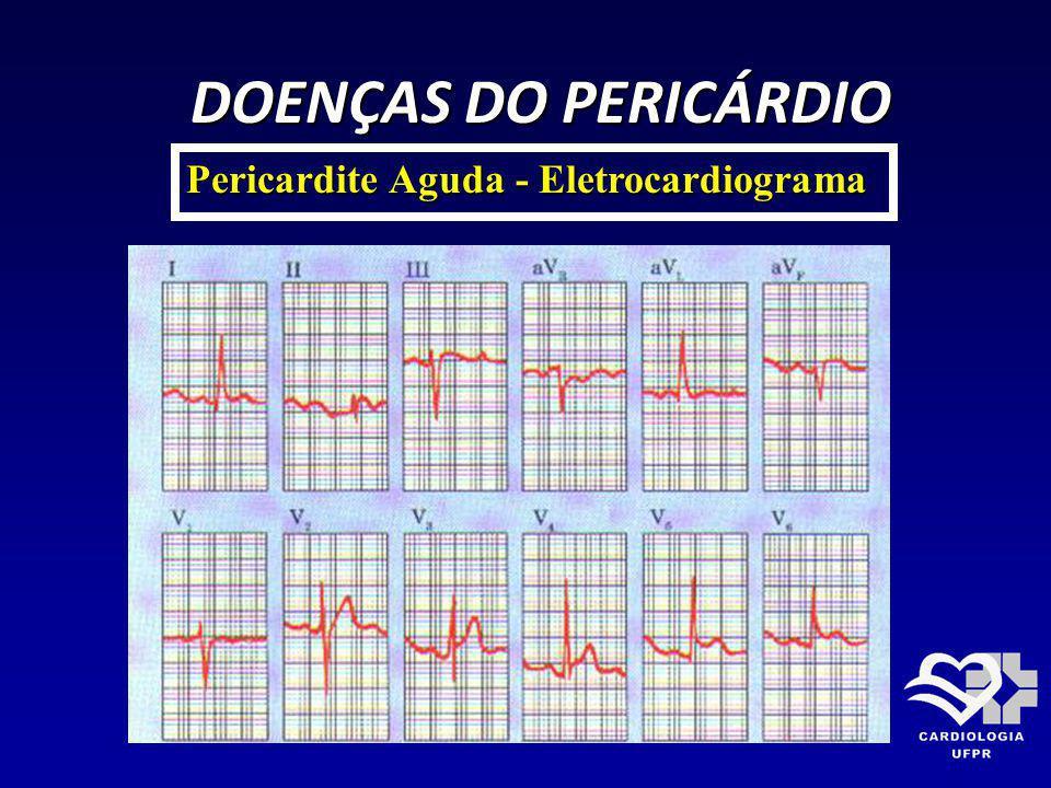 DOENÇAS DO PERICÁRDIO Pericardite Aguda - Eletrocardiograma