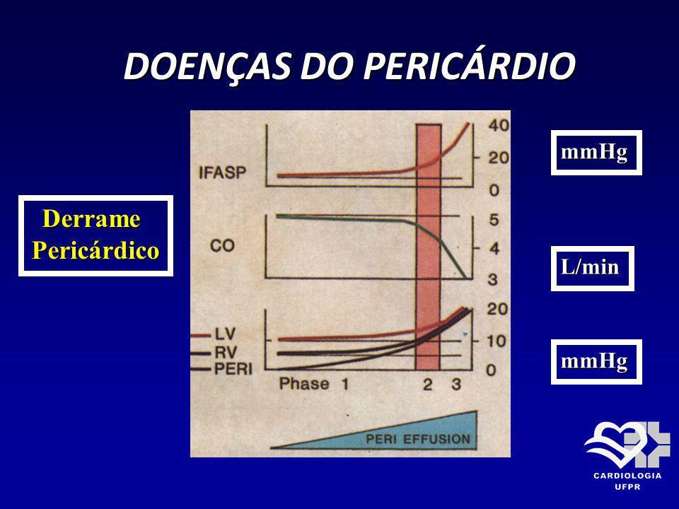 DOENÇAS DO PERICÁRDIO mmHg Derrame Pericárdico L/min mmHg