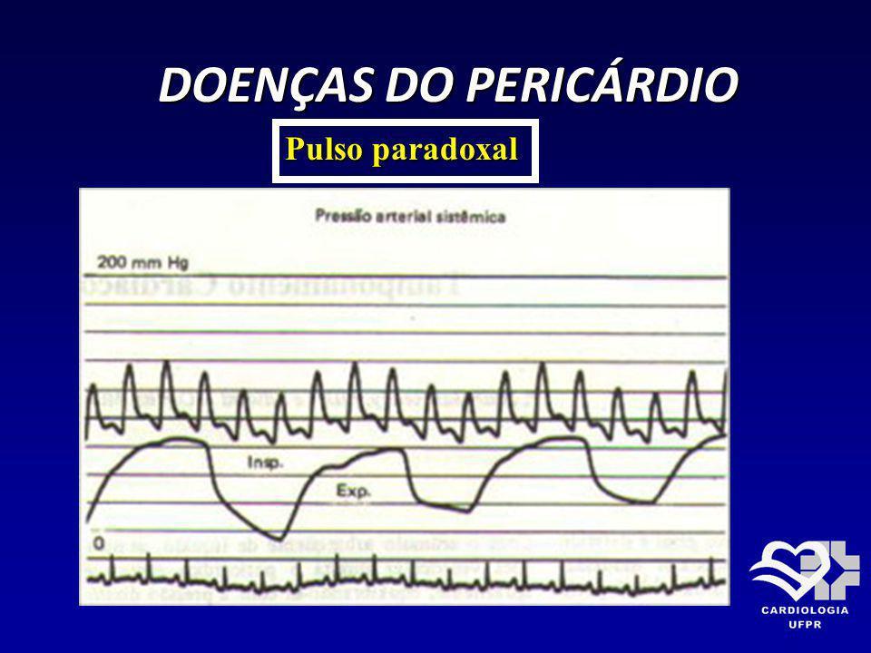 DOENÇAS DO PERICÁRDIO Pulso paradoxal