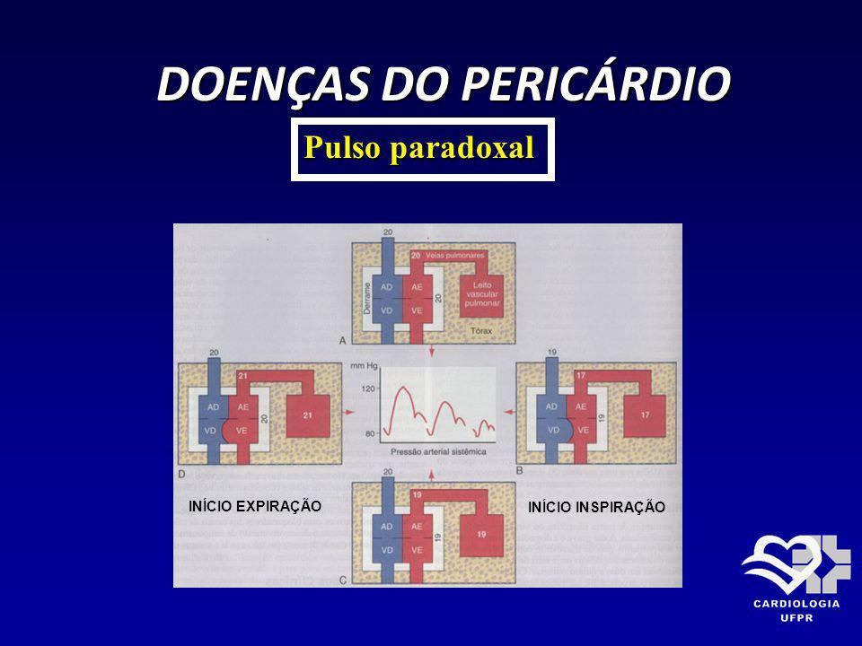 DOENÇAS DO PERICÁRDIO Pulso paradoxal INÍCIO EXPIRAÇÃO