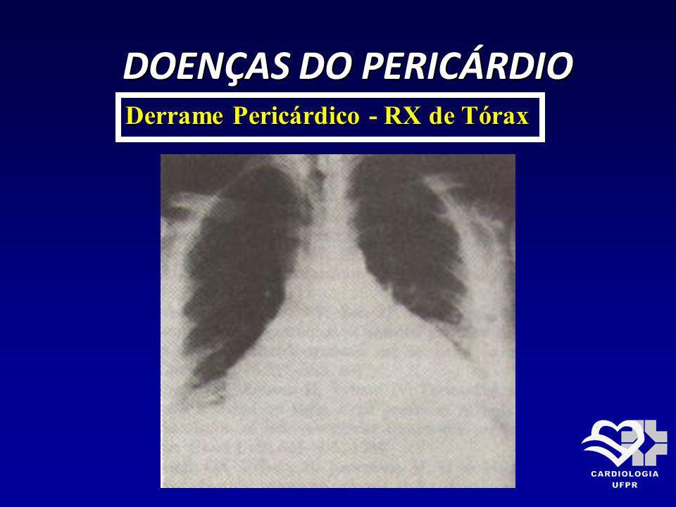 DOENÇAS DO PERICÁRDIO Derrame Pericárdico - RX de Tórax