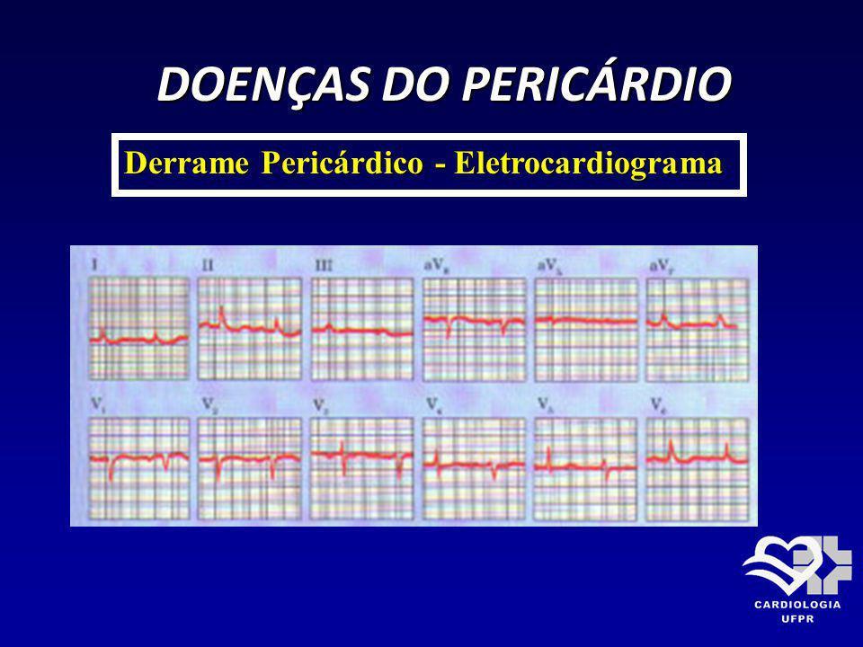 DOENÇAS DO PERICÁRDIO Derrame Pericárdico - Eletrocardiograma