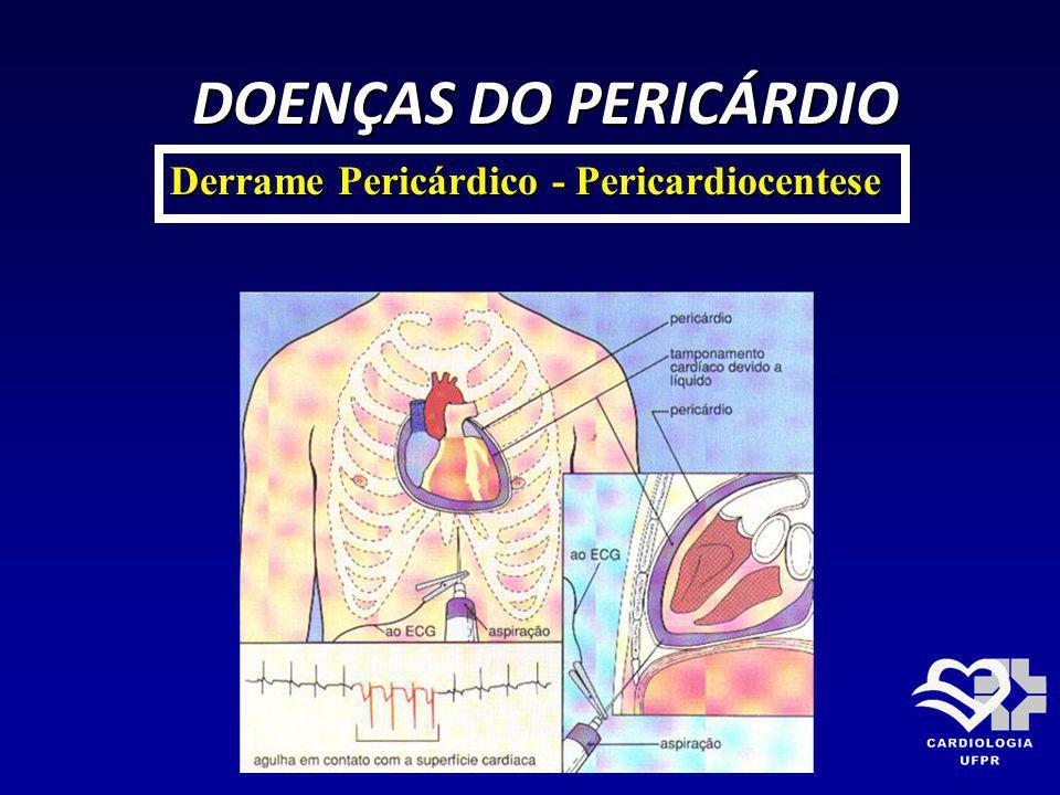 DOENÇAS DO PERICÁRDIO Derrame Pericárdico - Pericardiocentese