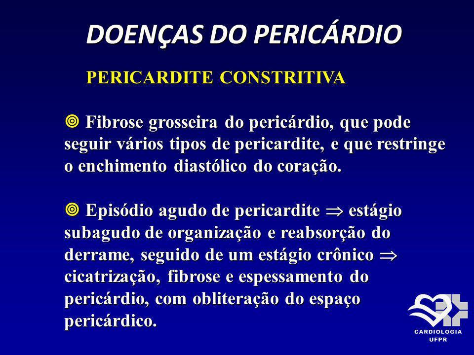 DOENÇAS DO PERICÁRDIO PERICARDITE CONSTRITIVA