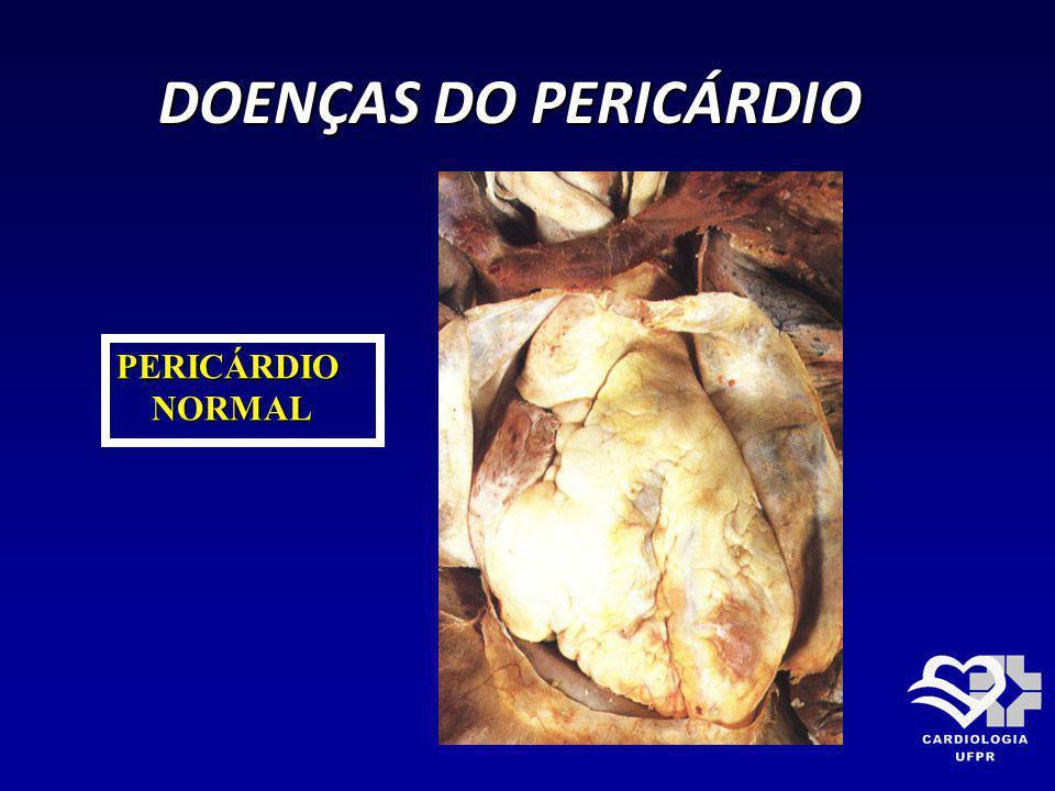 DOENÇAS DO PERICÁRDIO PERICÁRDIO NORMAL