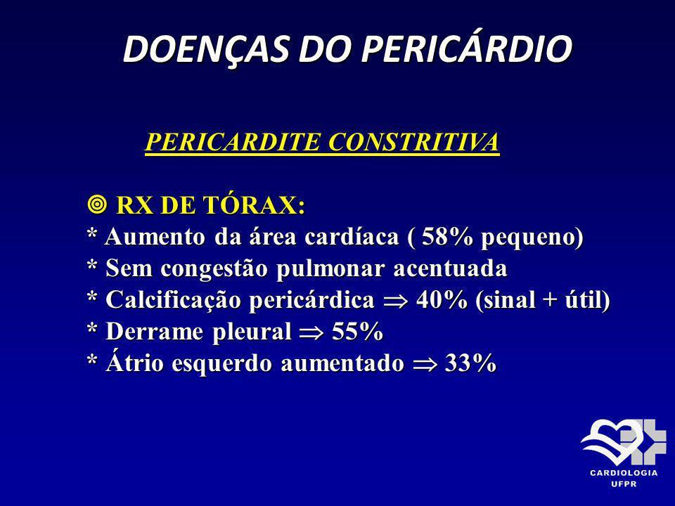 DOENÇAS DO PERICÁRDIO PERICARDITE CONSTRITIVA  RX DE TÓRAX: