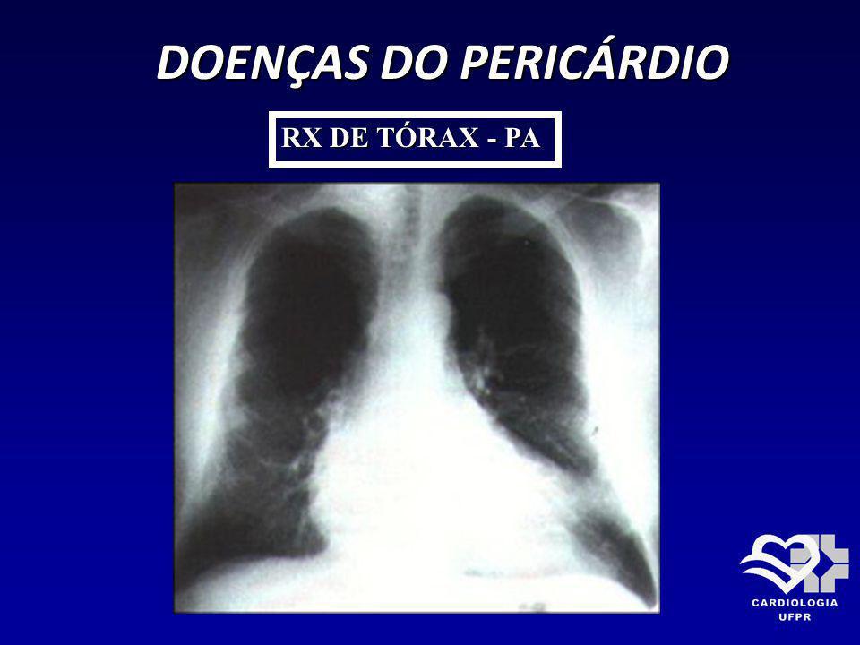 DOENÇAS DO PERICÁRDIO RX DE TÓRAX - PA