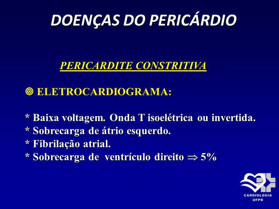 DOENÇAS DO PERICÁRDIO PERICARDITE CONSTRITIVA  ELETROCARDIOGRAMA:
