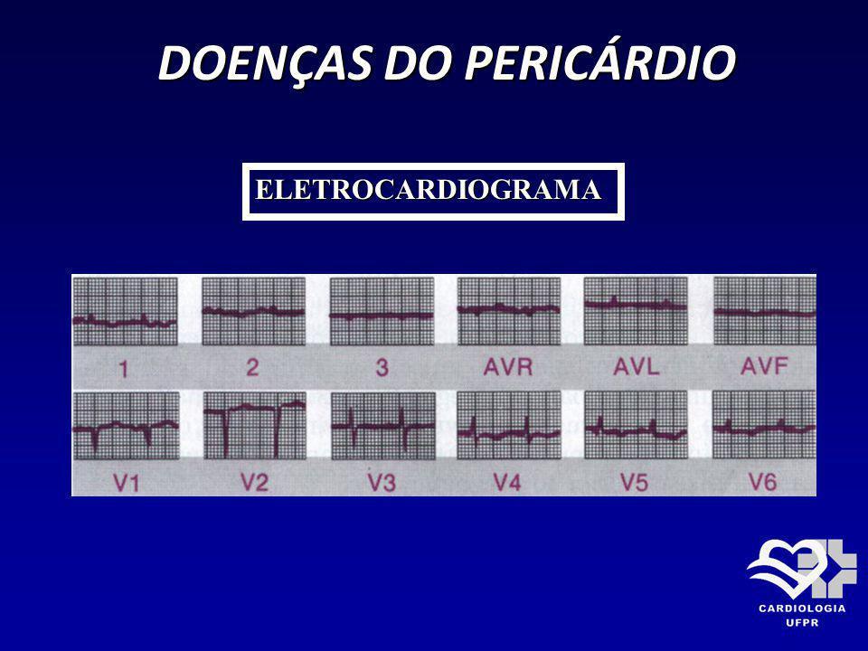 DOENÇAS DO PERICÁRDIO ELETROCARDIOGRAMA