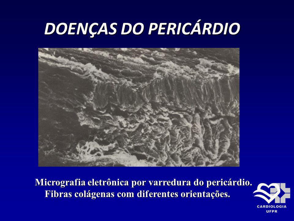 DOENÇAS DO PERICÁRDIO Micrografia eletrônica por varredura do pericárdio.