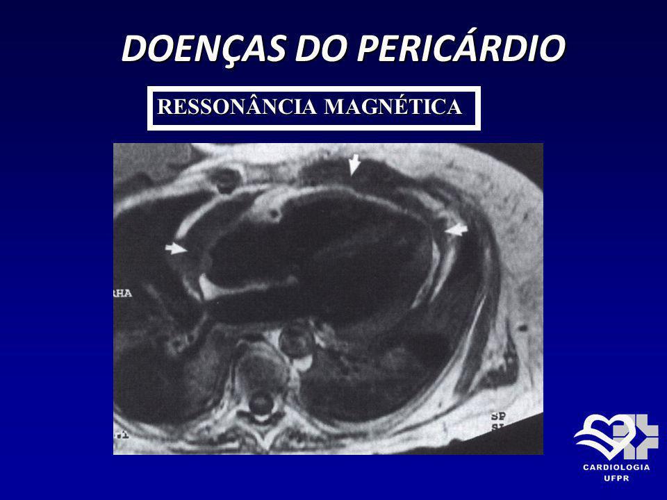 DOENÇAS DO PERICÁRDIO RESSONÂNCIA MAGNÉTICA
