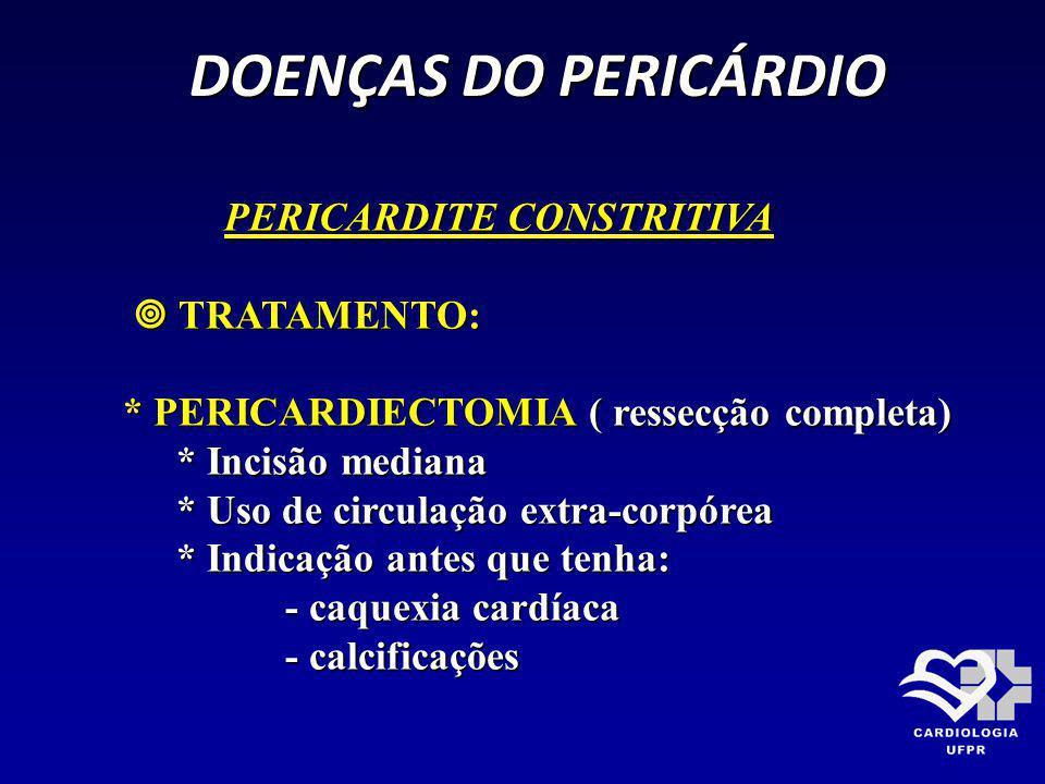 DOENÇAS DO PERICÁRDIO PERICARDITE CONSTRITIVA  TRATAMENTO:
